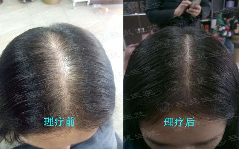 女孩日常防脱生发另发量倍增的办法