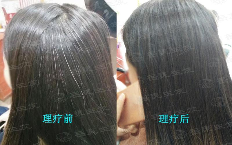 中医告诉你白发转黑发的方法