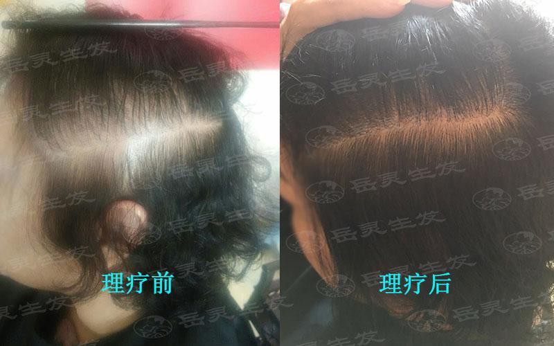 真正脱发的五大征兆警惕你健康养发