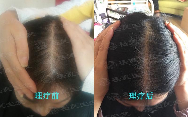 怎么止脱生发的养发护发好方法