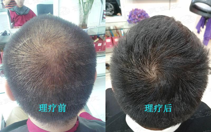 怎么防脱生发的养发护发办法