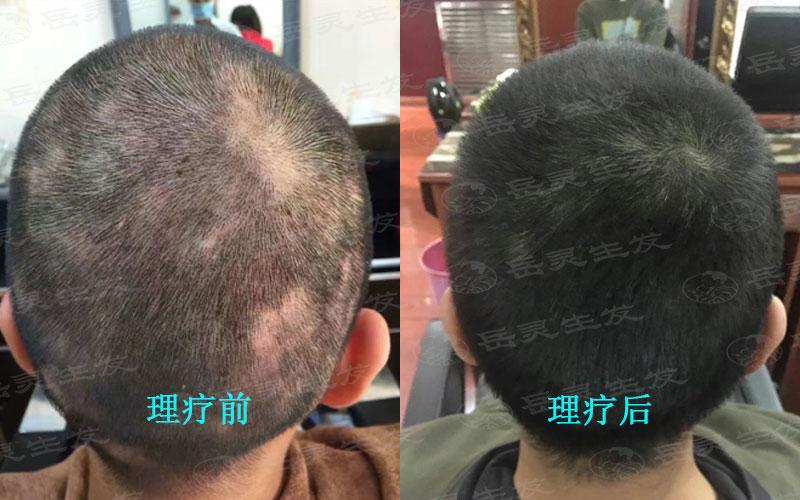 防脱生发男女有不同的生发养发方法