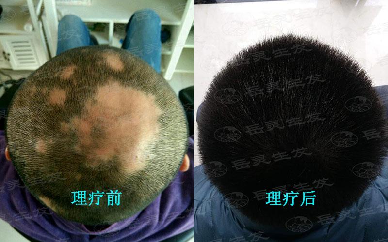 头发稀少生发养发的办法有哪些