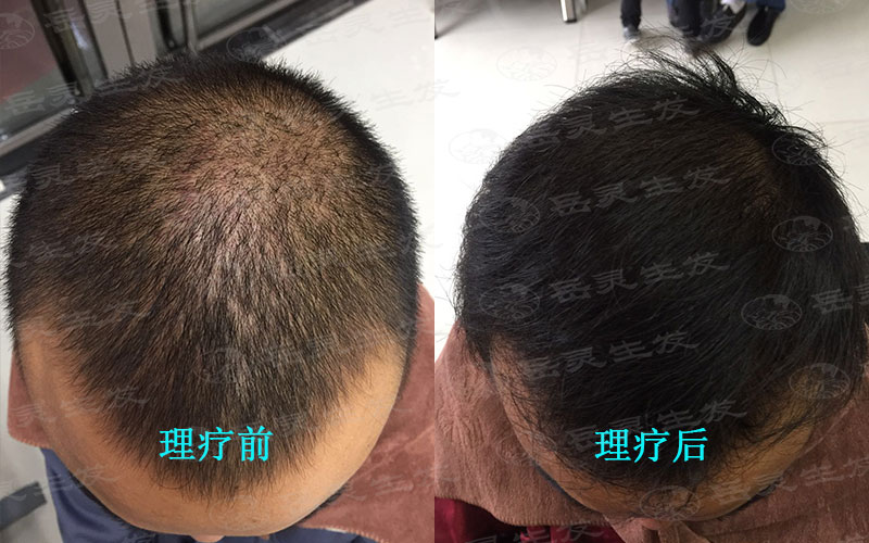 什么生发养发办法可以解决掉头发的问题