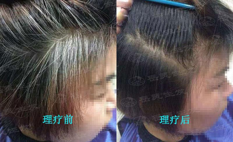 白发的原因及转黑的养发方法
