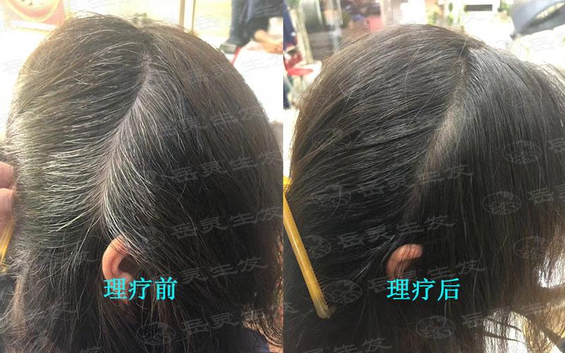 白头发变黑的有效养发方法