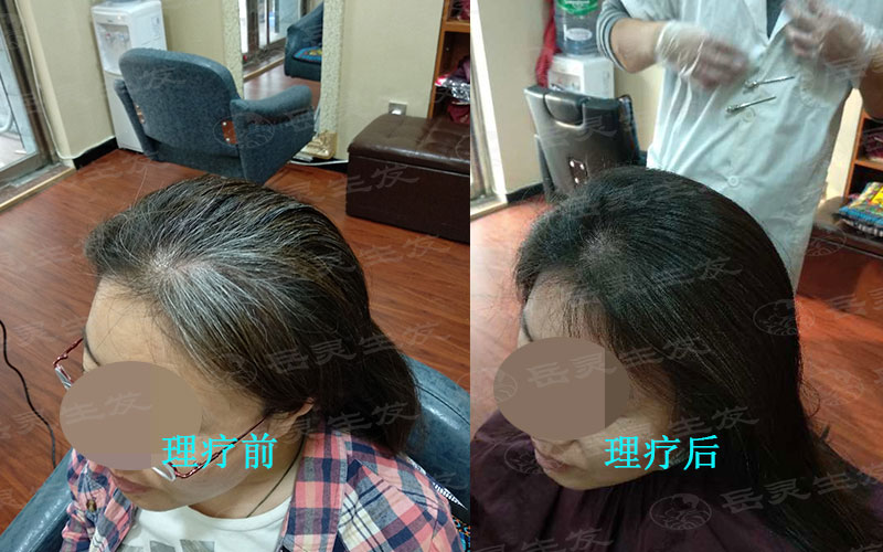 长白发的四大原因清楚了才能有效的预防转黑