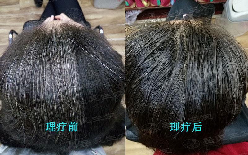 缺什么营养会导致白发?应该如何养发?