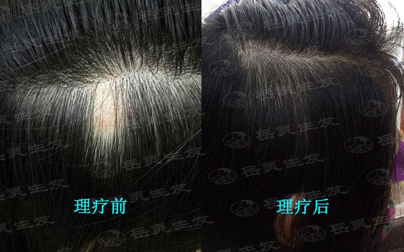 有哪些引起脱发的原因?