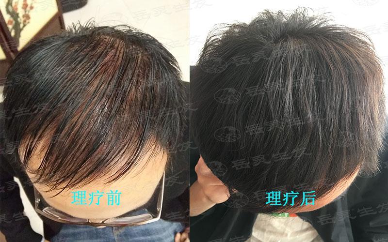 脱头发是什么原因所致?如何养发能够防脱发?