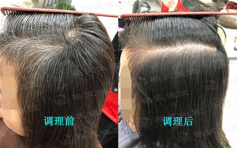 科学养发改善白发转黑发