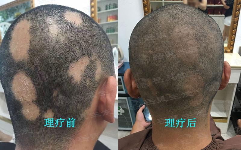 斑秃性脱发应该如何养发改善