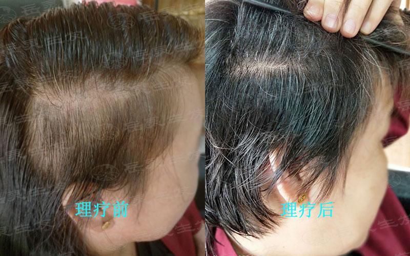 产后防脱生发该如何进行养发?