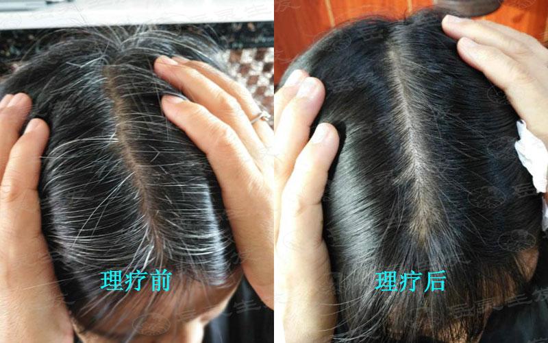 年轻人应该如何养发预防白发问题
