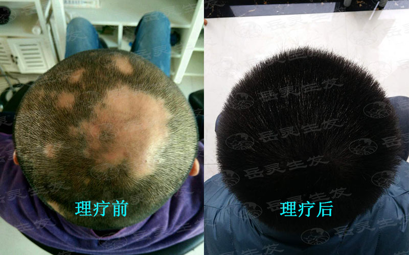 吃什么养发护发有利于防脱生发