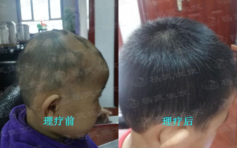 养发护发中防脱生发的食物有哪些?