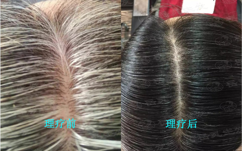 压力大导致的白发如何养发能转黑