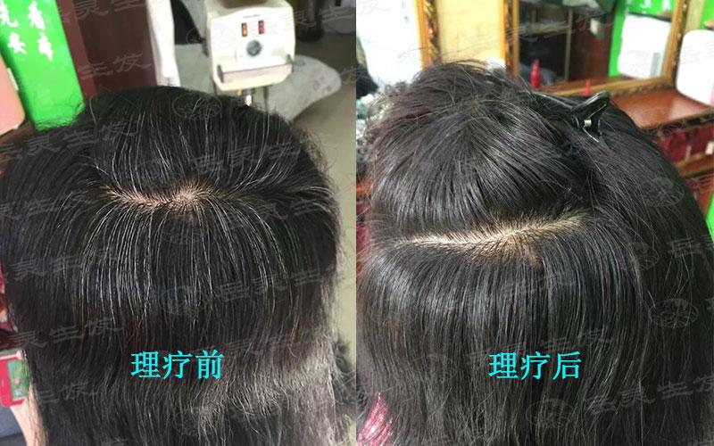 产后白发吃什么有利于转黑?