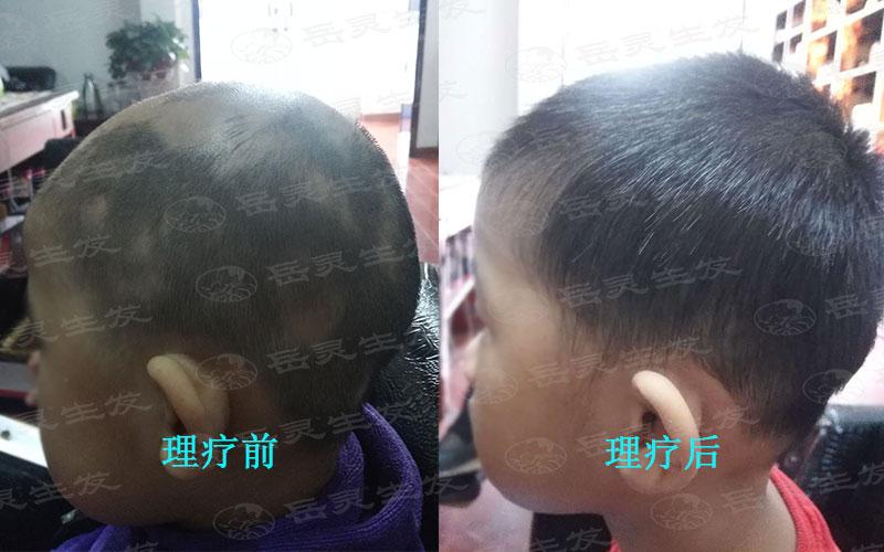 有哪些防脱发的生发养发方法