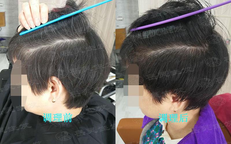 什么生发方法可以调理白发?