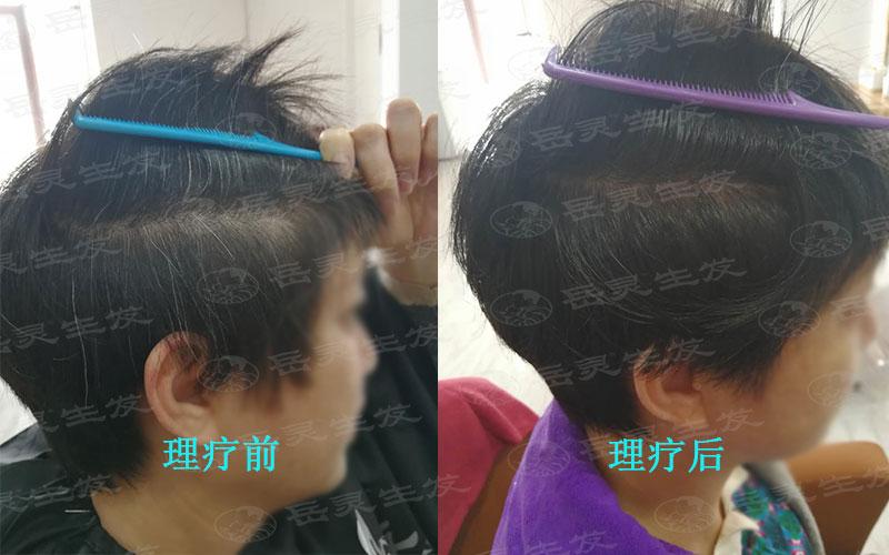 预防白发,从孩子抓起