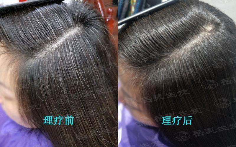 白头发变黑为什么是从根部开始?