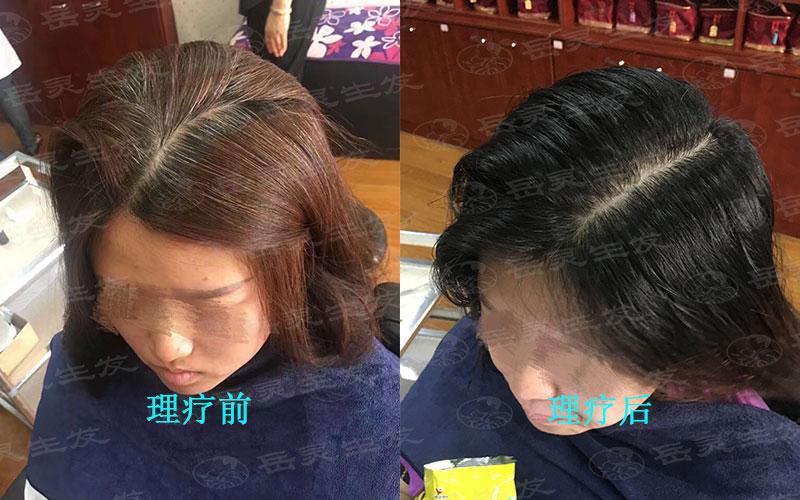 多梳头可以白发转黑的养发手法