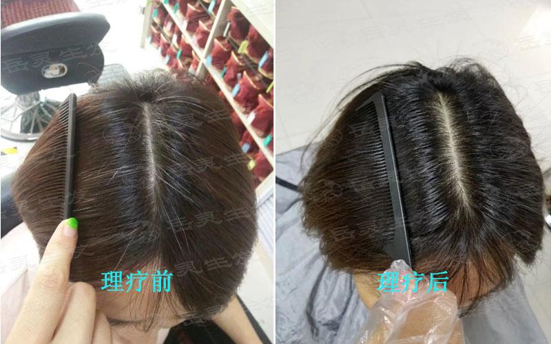 白发原因及变黑发的养发方法