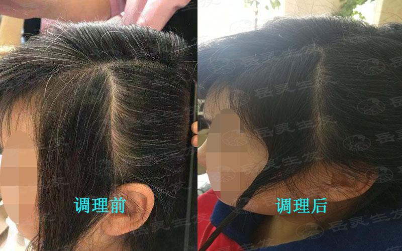 少白头变黑发的养发方法