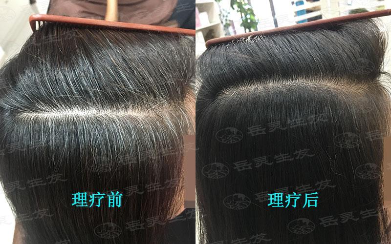 怎样才能白发变黑发