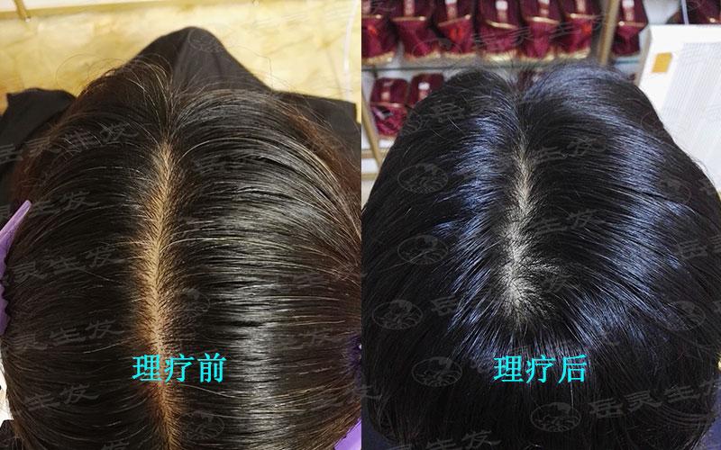 白发变黑的问题只需要注意这些养发事项