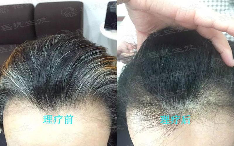 如何让白发转黑发你知道吗?