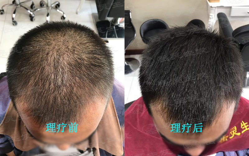 脱发状况很堪忧应该怎么办?该如何养发?