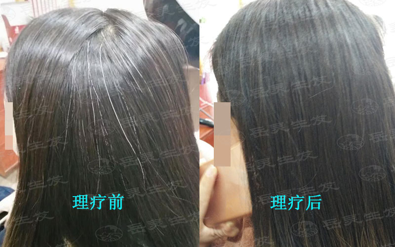 长白发的原因有哪些?
