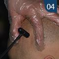 皮肤针疗法